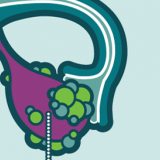 What is Ovarian Cancer?